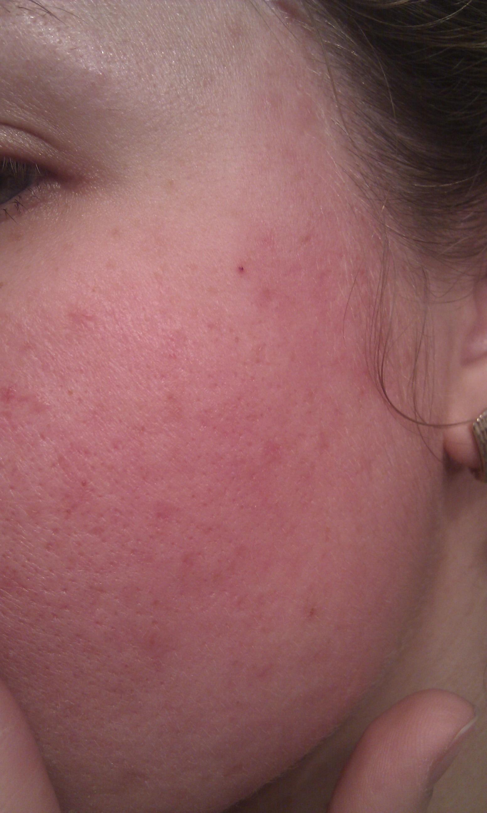 Гиперемия кожи — что это такое?