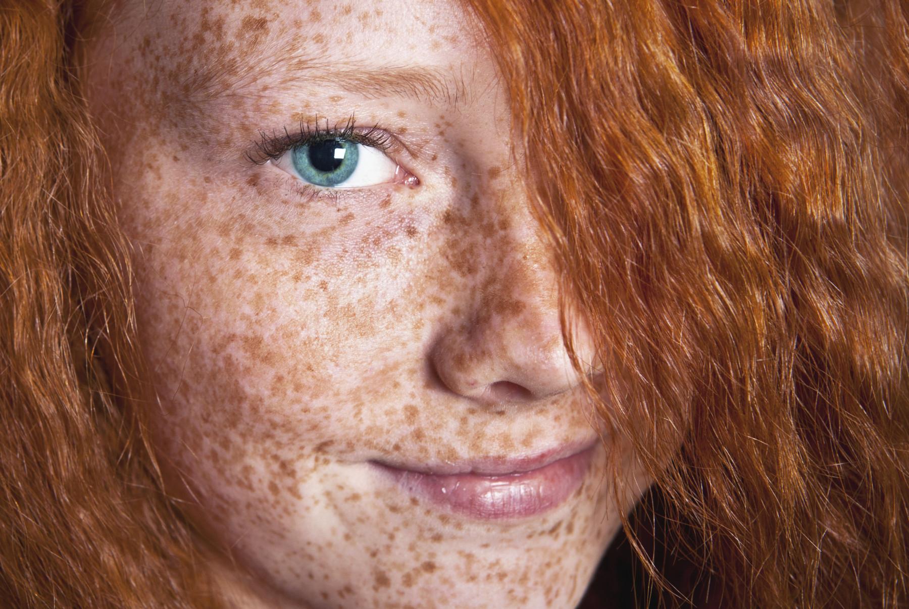 Пигментные пятна на лице — причины и лечение, как вывести