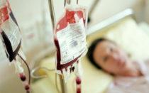 Переливание крови от прыщей, как избавиться от внутренних прыщей
