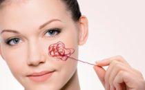 Розацеа на лице — лечение