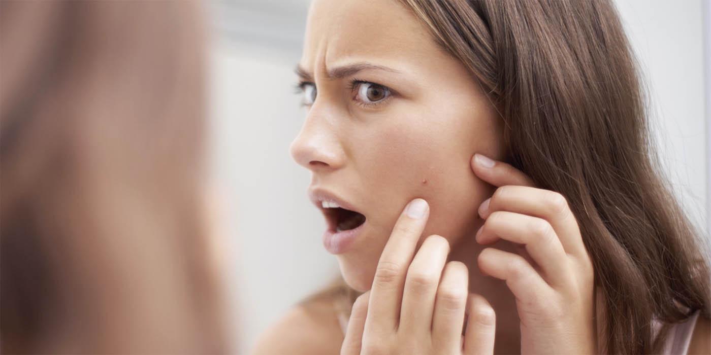 Сыпь на лице у взрослого: виды, причины, лечение мелкой, красной, угревой сыпи