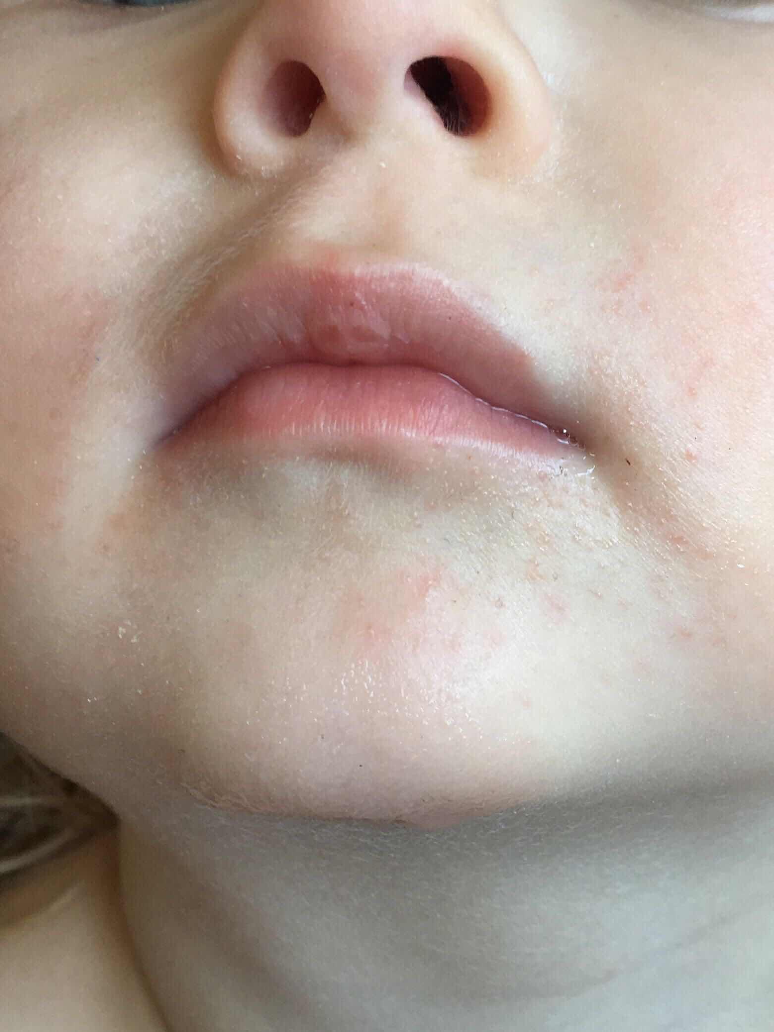 сыпь на лице у новорожденных, сыпь у рта